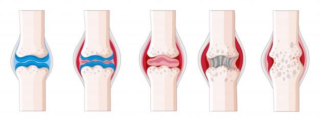 tratamiento fisioterapia artritis reumatoide